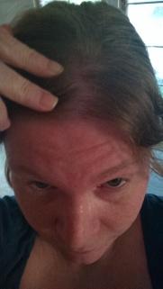 bad sunburns suck